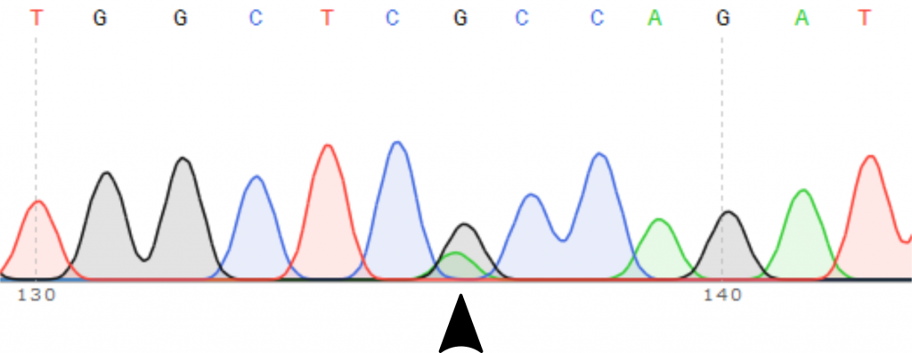 Sequencing trace covering the R206H mutation in ACVR1 found in FOP and DIPG